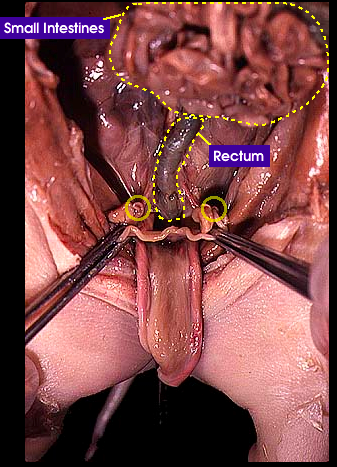 reproductive system - female